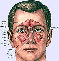 sinusitis treatment in Essex & London